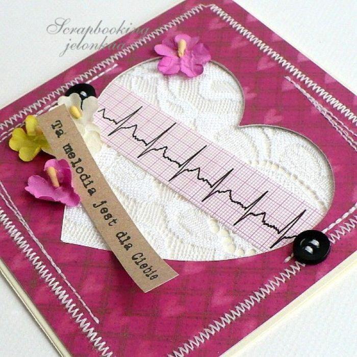 Serce EKG